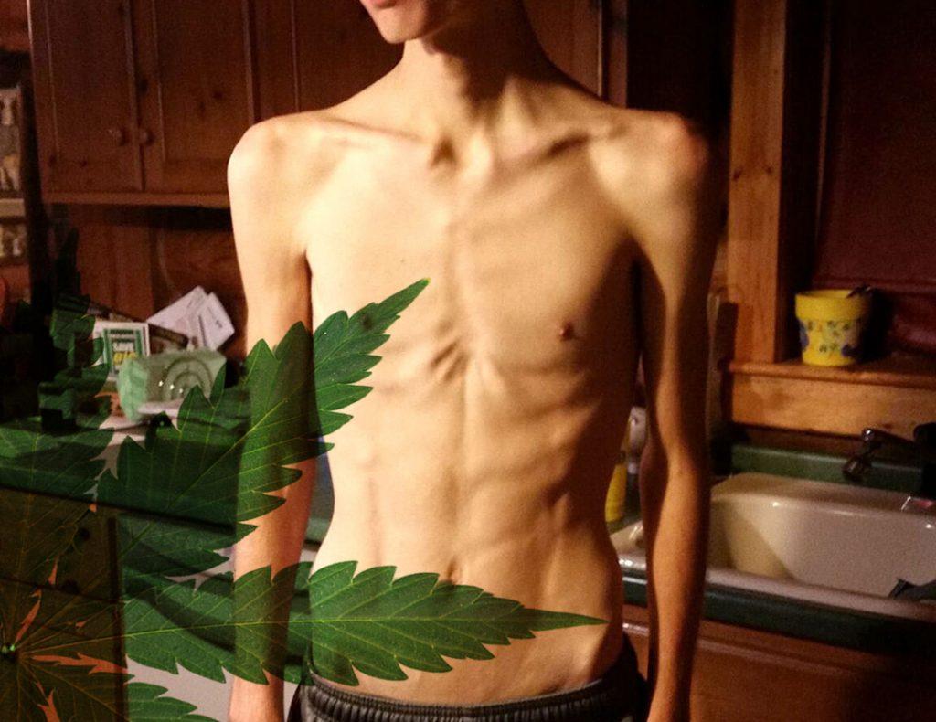 cbd anorexic